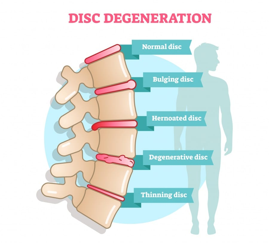 spinal disc slides